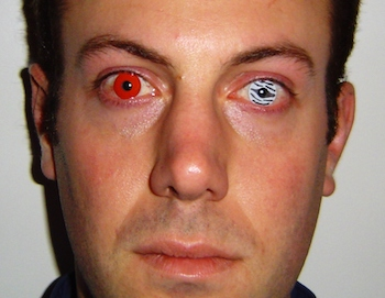 Dangers of Halloween Contact Lenses